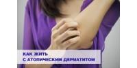 Как жить с атопическим дерматитом