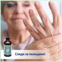 Ревматоидный артрит: следите за пальцами