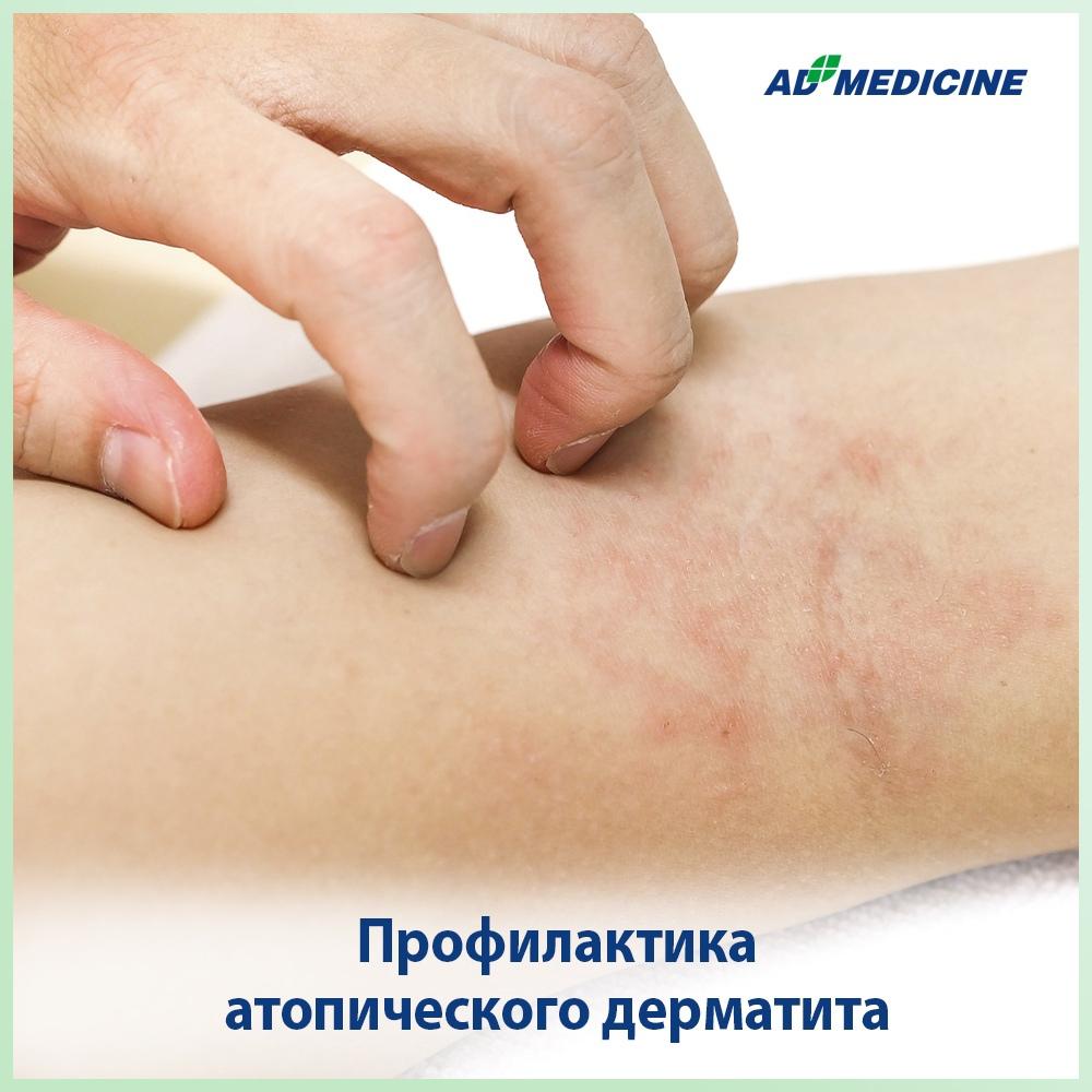Профилактика атопического дерматита